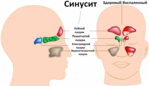 синусит у детей: симптомы, причины и лечение